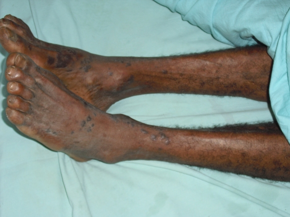 Kaposi sarcoma copy