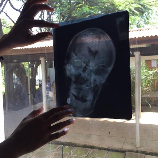 skull Xray